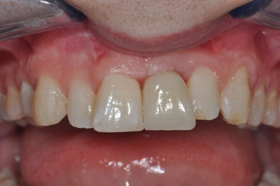 Single tooth implants - after - 3Dental