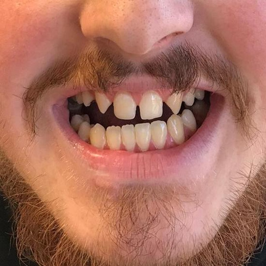 6 month braces & dental bonding - before - 3dental