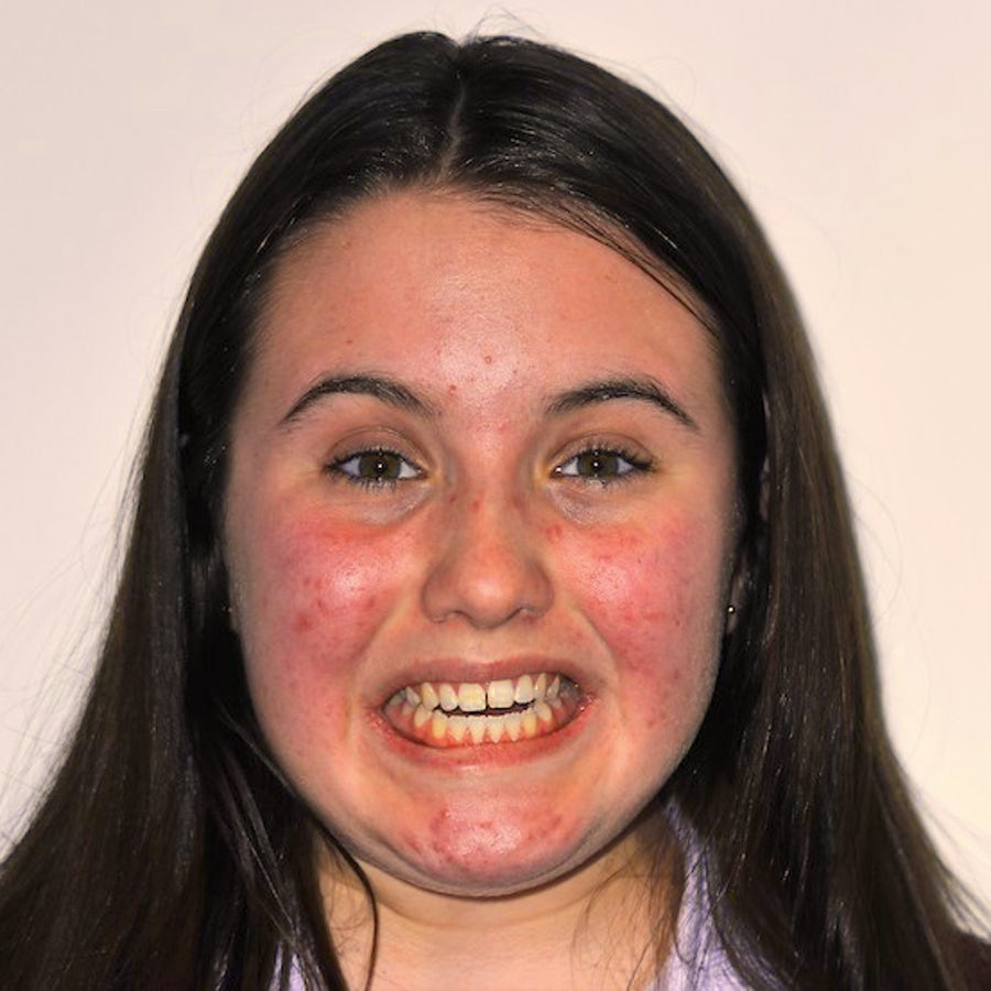 Teenage Braces - Costs and Other Questions - Kids Braces - Emma - before - 3Dental