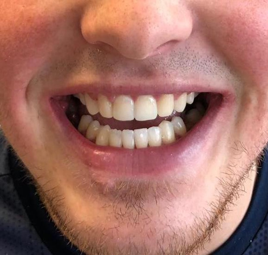 6 month braces & dental bonding - after - 3dental