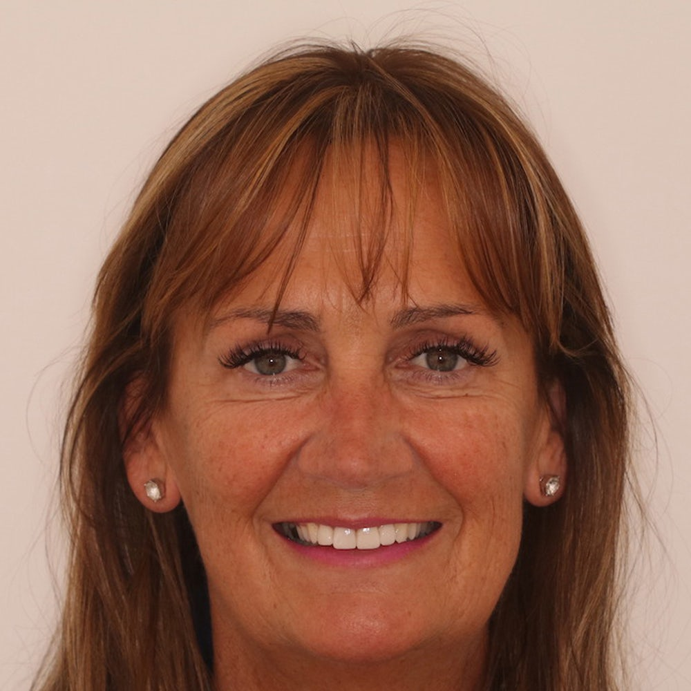 Joan Traynor - After Dental Veneers