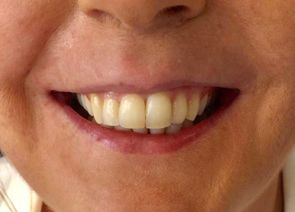donna-6-month-braces-after