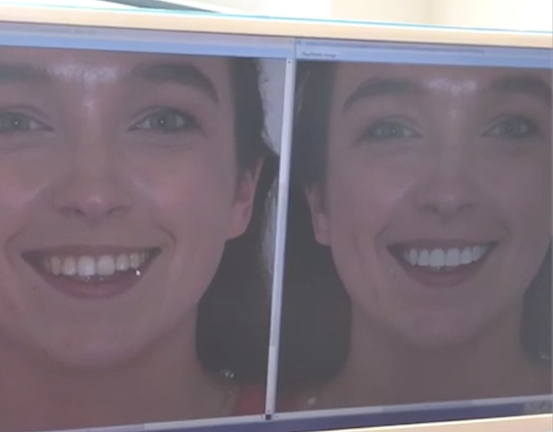 See What Your Smile Could Look Like
